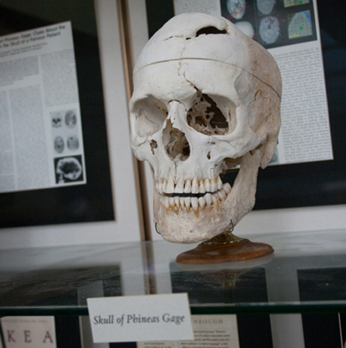 El craneo de Phineas Gage en la Harvard Medical School