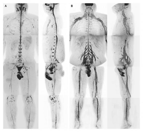 Neurografía por Resonancia Magnética del cuerpo entero - MRI diffusion