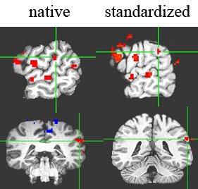fMRI normalizado