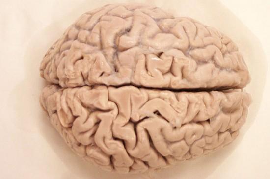 Cerebro - Dos hemisferios